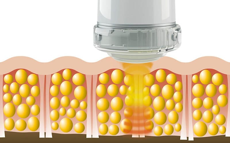 Focused Shockwave Therapy: A Clinically Proven, Pain-Free, Drug-Free Treatment Option for ED